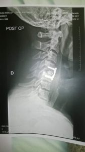 picture of cervical fracture