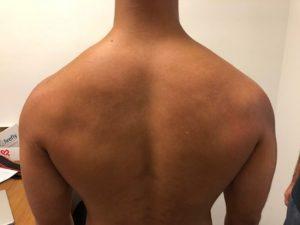 image depressed shoulders